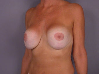 Breast lift and Implants before 306357