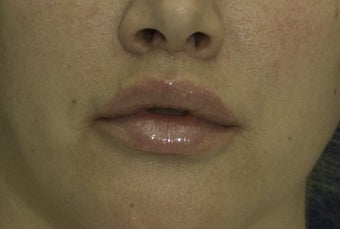 Lip Lift after 606639