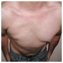 Chest implant for patient with Poland's syndrome before 334390