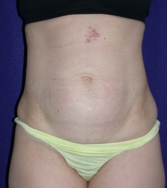 Tummy Tuck (abdominoplasty) before 208463
