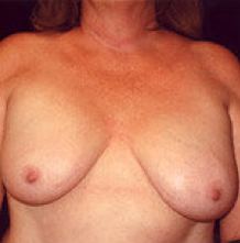 Breast implant removal and breast lift. before 316568