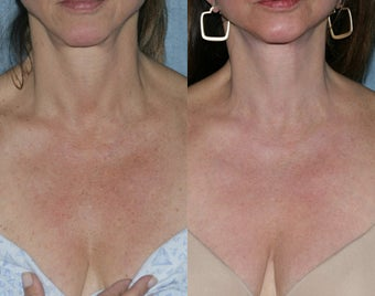 Fraxel Repair with Vbeam Perfecta and Alexandrite Lasers before 105208