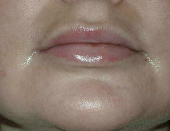 Permasil lip augmentation after 201573