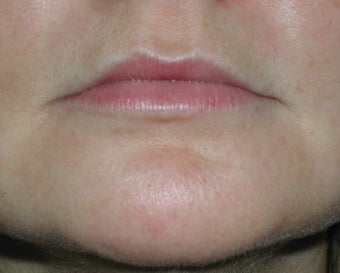 Permasil lip augmentation before 201573