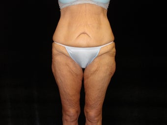 Body Lift with Liposuction of Abdomen, Waist, and Flanks before 203468