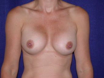 Breast Augmentation after 204618