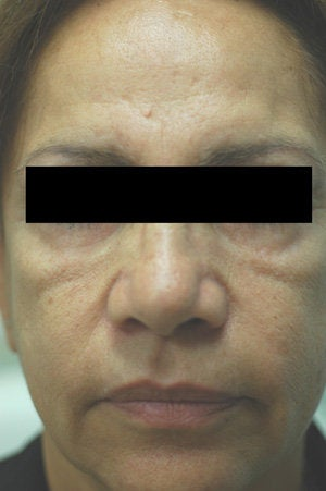 Cheek Shaping with Juvederm Los Angeles Before and After Photos before 204760
