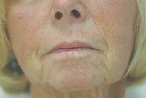 Juvederm for Smile Lines Long Beach, CA Before and After Pictures before 204767