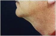 Chin Augmentation after 205406
