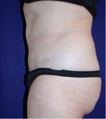 Tummy Tuck (abdominoplasty) 208467