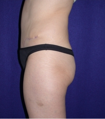 Tummy Tuck (abdominoplasty) 208468