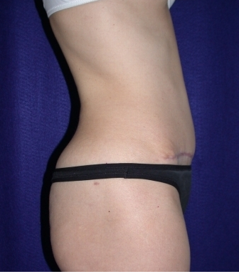 Tummy Tuck (abdominoplasty) 208471