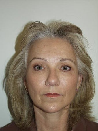 Facelift and Blepharoplasty after 209967
