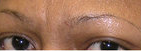Botox and Filler Results before 214446
