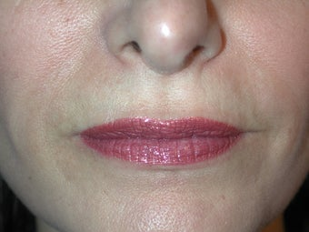 Juvederm Lips before 215707