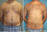 Male Breast Reduction before 217798