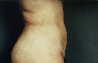 Liposuction after 217864