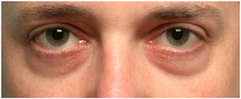 Restylane to lower eyelid hollows before 219713
