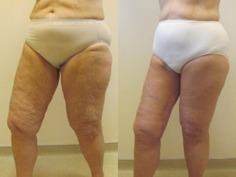 Circumferential thigh lift after 220775