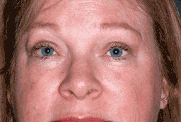 Upper Eyelid Blepharoplasty and Ptosis Repair after 222445
