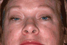 Upper Eyelid Blepharoplasty and Ptosis Repair before 222445