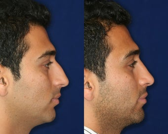 Rhinoplasty and Septoplasty before 223664
