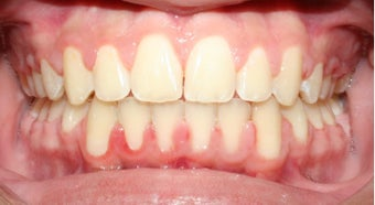 Teen Orthodontic Treatment (case #1DC) after 224713