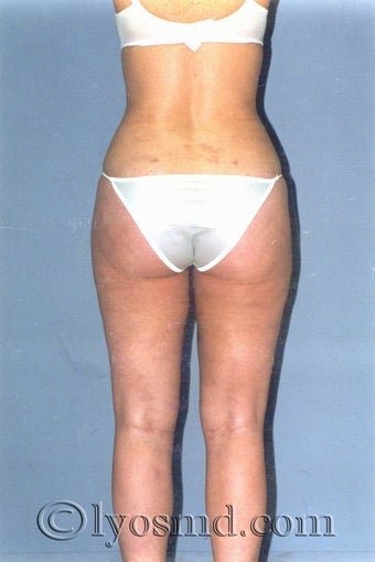 Liposuction after 225378