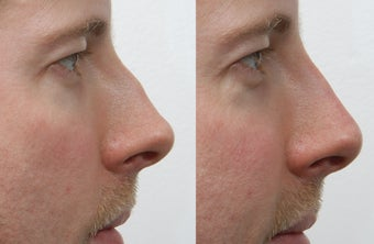 Rhinoplasty before 225887