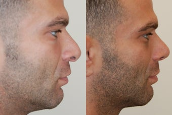 Revision Rhinoplasty Surgery before 226768