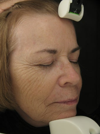 Fraxel Dual for wrinkles in cheeks and pigmentatioin before 227023