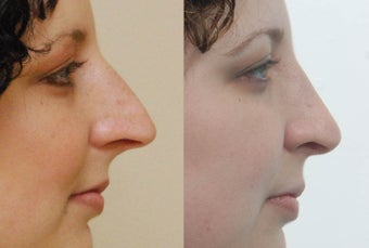 Rhinoplasty before 227863