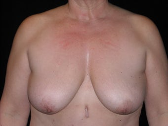 Breast lift (mastopexy) before 231908