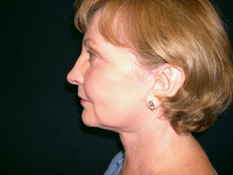 Necklift after 233743