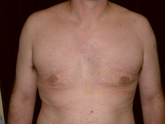 Gynecomastia Reduction Surgery after 233769
