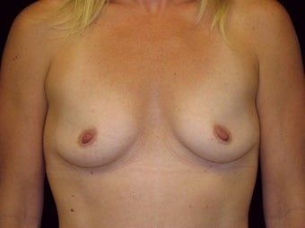 Breast augmentation before 293899