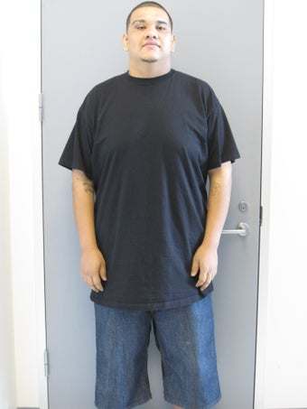 Gastric Bypass after 217188