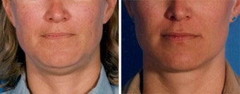 Chin Liposuction before 640676