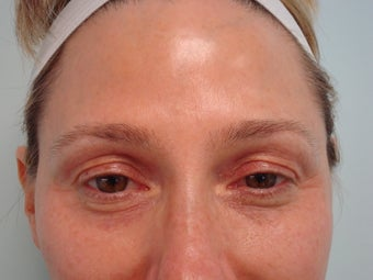 """No-Lift"" Eye Lift with Portrait PSR and Filler Injection before 583358"