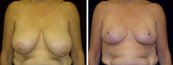 58 year old female, breast reduction before 630935