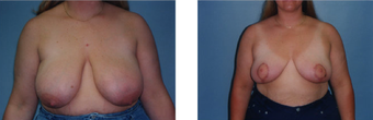 Breast Reduction before 265875