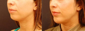 Chin Implant Surgery after 534599