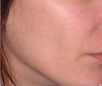 Ulthera Laser Skin Tightening after 346276