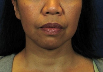 Chin Implant with Laser Facelift before 342973
