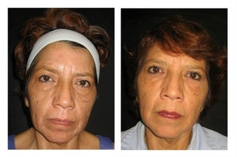 Non-Surgicial Facelift before 610411