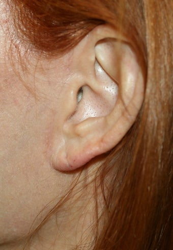 Earlobe filler after 393288