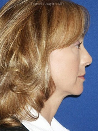 Cheeklift (Minifacelift), Bilateral Upper Blepharoplasty, Periorbital TCA Chemical Peel, Soft Tissue Filler to Nasolabial Folds after 249153