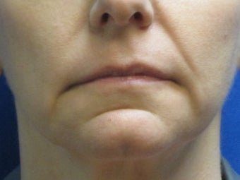 Juvederm chin and lip enhancement before 582251