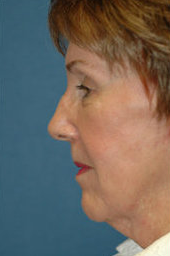 Neck Lift before 324029