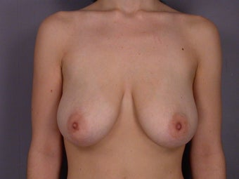 Breast lift/ Breast Augmentation before 290950